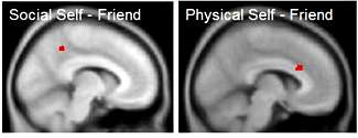 Study shows brain function differences in women with anorexia