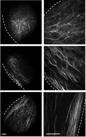 Discovery helps show how breast cancer spreads