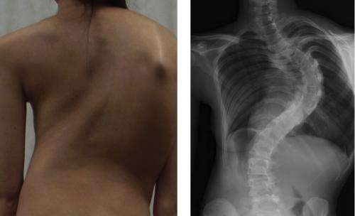 Gene associated with adolescent idiopathic scoliosis identified