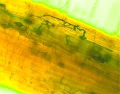 Plants use underground networks to warn of enemy attack