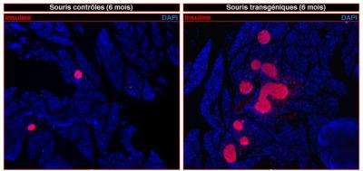 Type 1 diabetes: Can insulin-producing cells be regenerated?