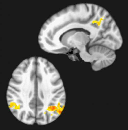 Brain imaging reveals dynamic changes caused by pain medicines