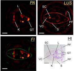 New setup for hybrid photoacoustic and ultrasound imaging with optical ultrasound detection