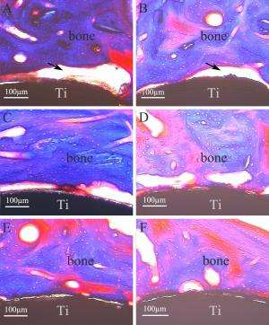 Improving the performance of titanium implants by bioactive composite coatings