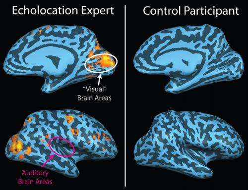 Researchers find humans process echo location and echo suppression differently