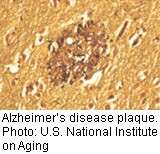 2 new alzheimer's drugs show promise in early studies