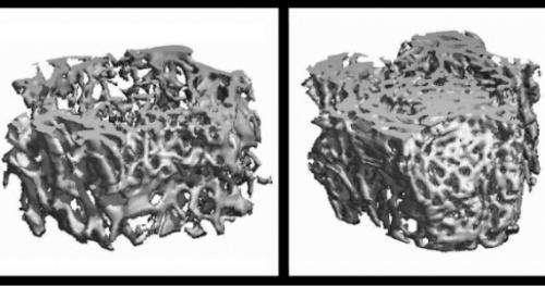 Penn Researchers Pinpoint How Smoking Causes Osteoporosis