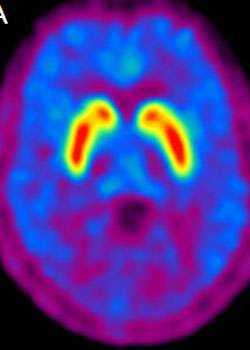 Study identifies promising drugs for treating Parkinson's