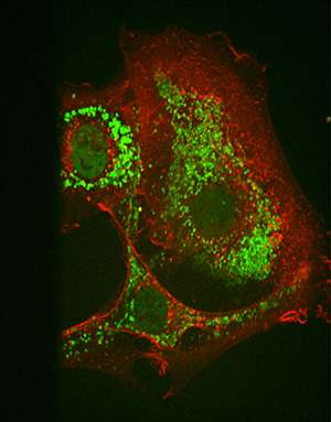 Cancer biology: Targeting tumors with 'stapled' peptides