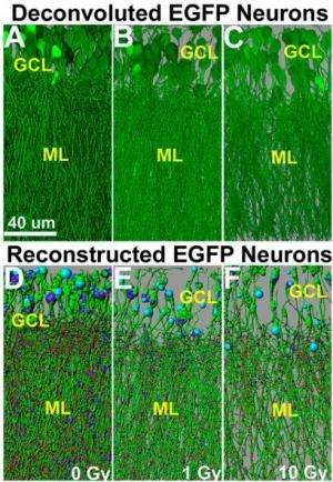 Cranial irradiation causes brain degeneration