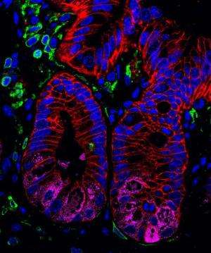 Penn researchers identify molecular link between gut microbes and intestinal health