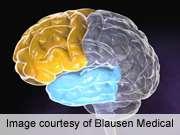 Acute hypoglycemia impairs executive cognitive function