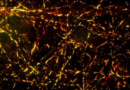 Altered protein shapes may explain differences in some brain diseases