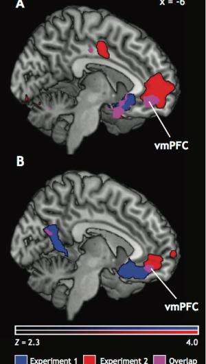 Brain sets prices with emotional value