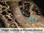 CDC: national bone mineral density data released