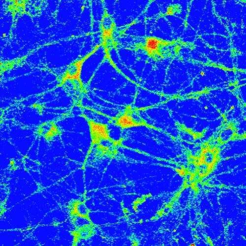 Copper on the brain
