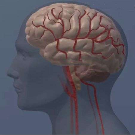 Delay in breaking up blood clots means worse stroke outcome