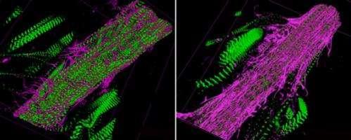 Diabetic fruit flies support buzz about dietary sugar dangers