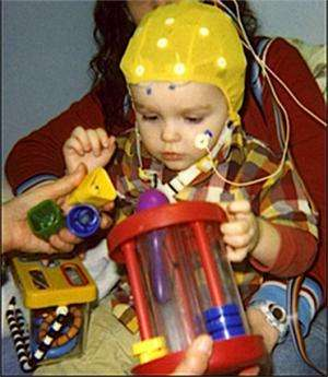 Early brain responses to words predict developmental outcomes in children with autism