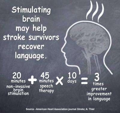 Early brain stimulation may help stroke survivors recover language function