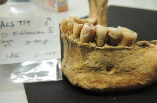 Ancient teeth bacteria record disease evolution