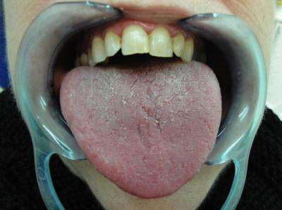 Effectiveness of a spray that greatly improves dry mouth sensation caused by anti-depressants