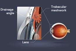 Eye disease: Opening our eyes to glaucoma