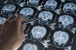 Feeling hungry may protect the brain against Alzheimer's disease, study finds