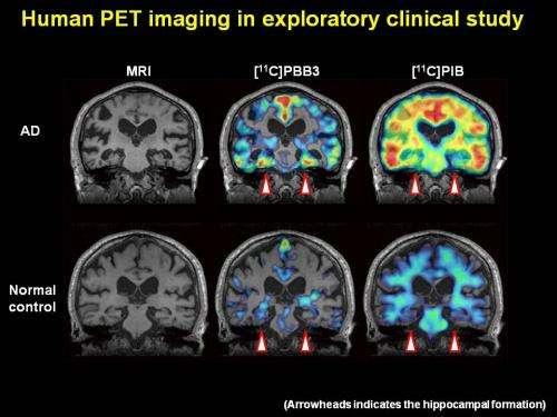 Fluorescent compounds allow clinicians to visualize Alzheimer's disease as it progresses