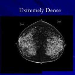 Following mammography, physicians must notify of breast density, NY law states