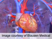 Free fatty acids linked to cardiac risk in late adulthood