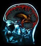 Having both migraines, depression may mean smaller brain