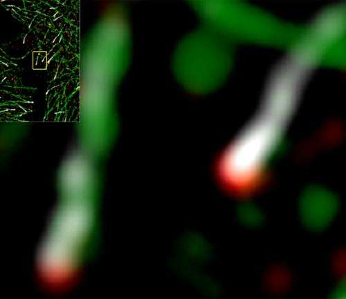 High-powered microscopic techniques give scientists detailed view of a critical component of cellular infrastructure