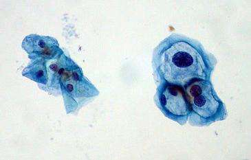 HIV-positive men show high rates of papillomavirus infection at oral, anal and penile sites
