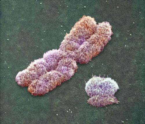 Human Y chromosome much older than previously thought