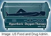Hyperbaric oxygen chambers aren't cure-alls, FDA warns