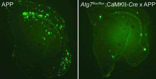 Key cellular auto-cleaning mechanism mediates the formation of plaques in Alzheimer's brain