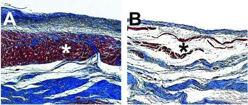 New injectable hydrogel encourages regeneration, improves functionality after heart attack