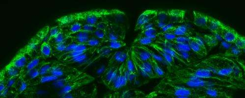 MBL researchers find zinc's crucial pathway to the brain