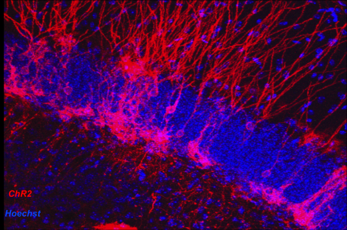 Medical center identifies role of neuron creation in anxiety disorders