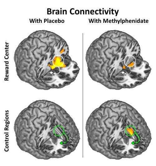 Methylphenidate Modulates Brain-Circuit Connectivity in Cocaine-Addicted Individuals