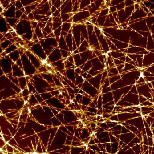 Molecular trigger for Alzheimer's disease identified