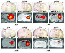 New system uses nanodiamonds to deliver chemotherapy drugs directly to brain tumors