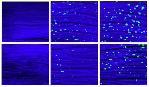 Protein interplay in muscle tied to life span