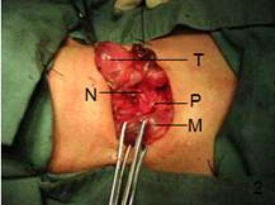 Routine exposure of recurrent laryngeal nerve in thyroid surgery can prevent nerve injury