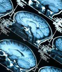 Scientists break blood-brain barrier to allow cancer drugs in
