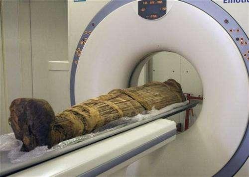 Study: Even ancient mummies had clogged arteries