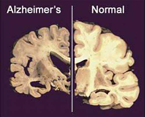 Testing brain pacemakers to zap Alzheimer's damage