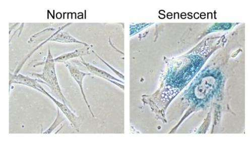 Shutting down DNA construction: How senescence halts growth of potential cancers