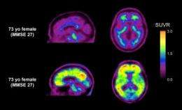 Tracing the impact of amyloid beta in mild cognitive impairment